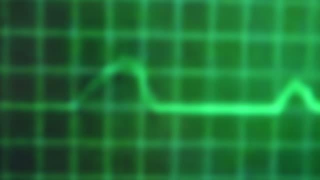 ekg pulse - heartbeat stock videos & royalty-free footage