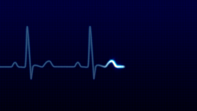 ekg/impulso forma d'onda, hd - linea video stock e b–roll