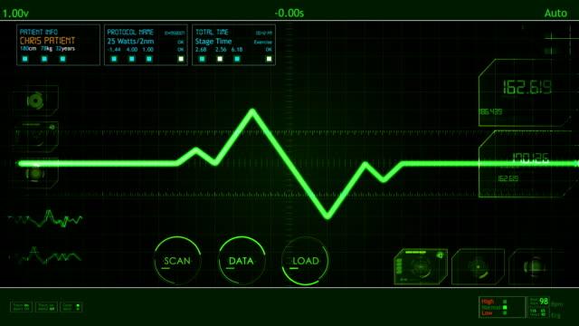 EKG Pulse Waveform screen HUD