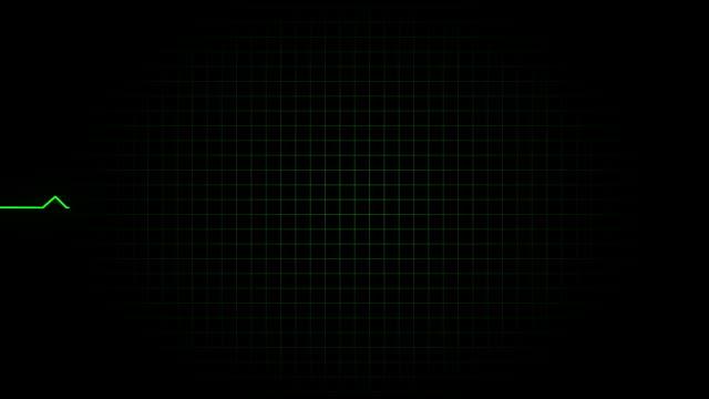 EKG / Pulse Waveform