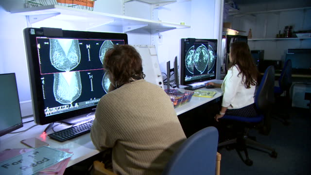radiography doctors studying mammogram xrays for early signs of breast cancer - torso stock videos & royalty-free footage