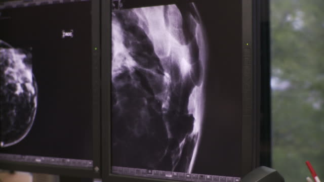 cu pan radiologist examining x-ray image and ct scans on computer screen / south burlington, vermont, usa - radiologist stock videos and b-roll footage