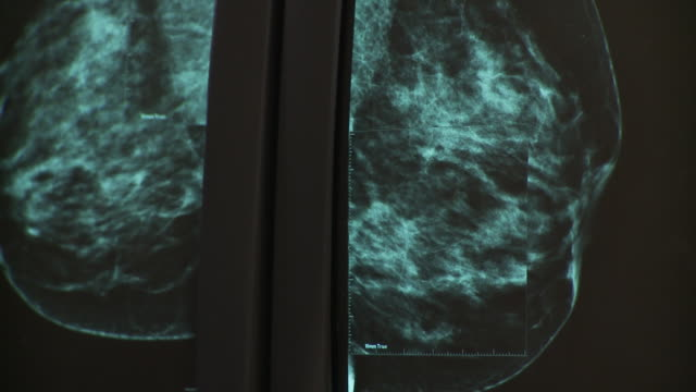 ecu pan radiologist studying mammogram images on computer / south burlington, vermont, usa - radiologist stock videos & royalty-free footage