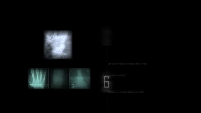 radiology - lumbar vertebra stock videos & royalty-free footage