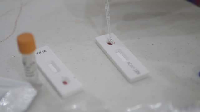rapid test covid 19. test cassette and a kit of reagents for self-sampling of blood for analysis on coronovirus covid-19 - young animal stock videos & royalty-free footage