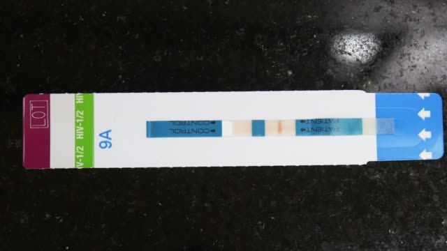 rapid test hiv, the result of a positive rapid hiv test - testing kit stock videos & royalty-free footage