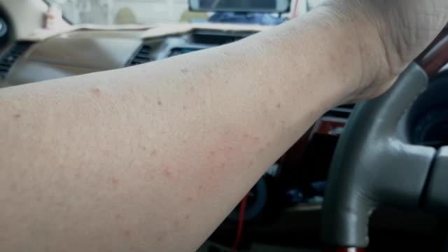 腕の近くで発疹または水疱 - バイオハザードマーク点の映像素材/bロール