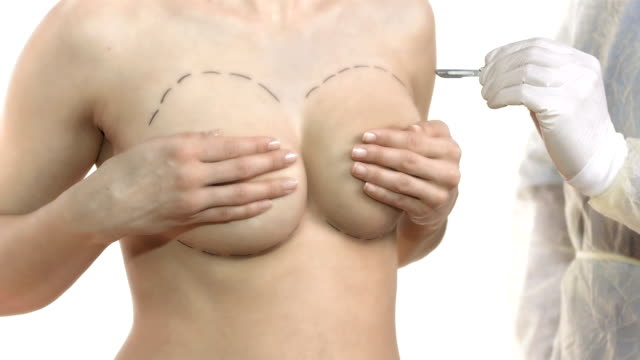 hd dolly: ready for breast augmentation - breast augmentation stock videos and b-roll footage