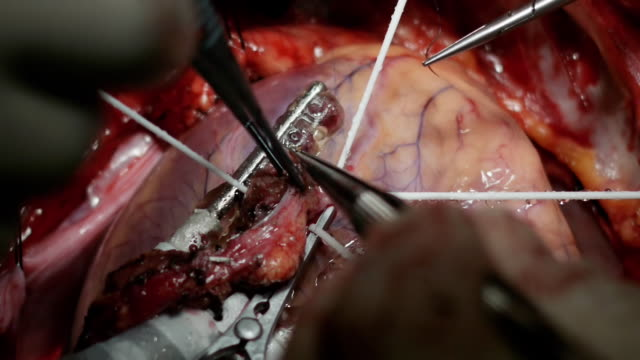 real coronary artery bypass surgery footage : stitching - coronary artery stock videos & royalty-free footage