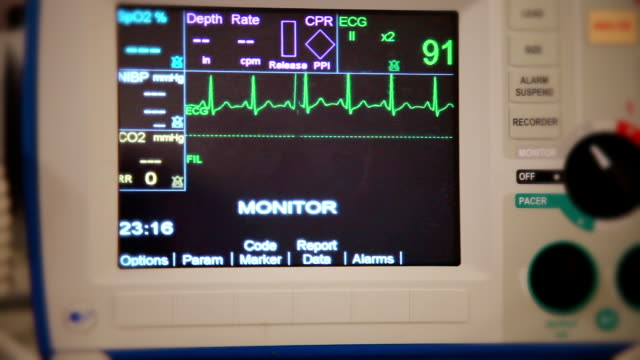 realistic shot from patient's point of view of heart monitor shows normal sinus rhythm - myocardium stock videos & royalty-free footage