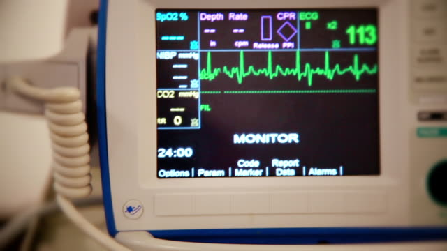 realistic shot of heart attack (atrial fibrillation) from patient's point of view of heart monitor shows normal sinus rhythm - myocardium stock videos & royalty-free footage