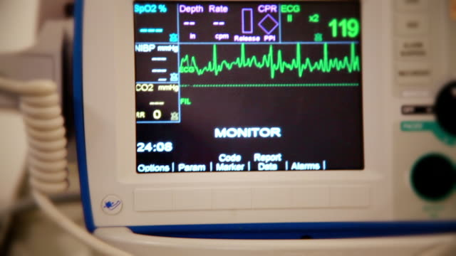 realistic shot of heart attack (atrial fibrillation) from patient's point of view - myocardium stock videos & royalty-free footage
