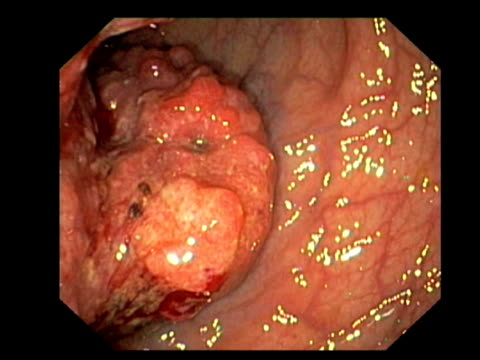 Rectal cancer. Endoscopic view of a malignant (cancerous) tumour in a patients rectum..