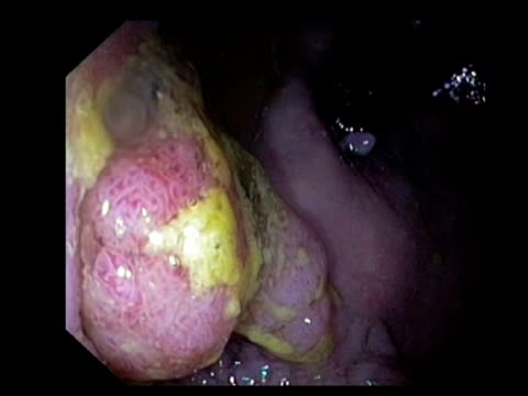 Rectal cancer. Endoscopic view of an adenocarcinoma (cancerous tumour) in the rectum, near the anal canal..