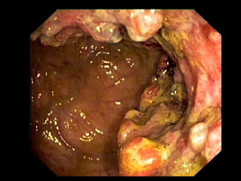 Rectal cancer. Endoscopic view of an adenocarcinoma (cancerous tumour) in the rectum..