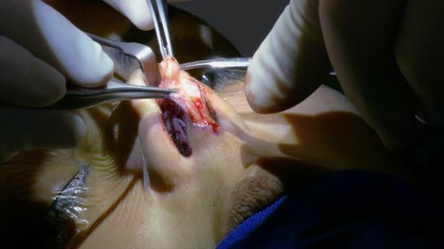 vídeos y material grabado en eventos de stock de eliminación del tabique nasal durante el procedimiento quirúrgico de corrección de desviación de tabique nasal y rinoplastia. paciente femenino bajo anestesia general. - cirugía plástica