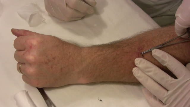 removing stitches 2 - medical dressing stock videos & royalty-free footage