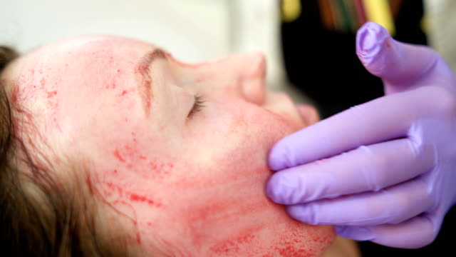 revolutionary treatment of rejuvenation with blood plasma - injecting stock videos and b-roll footage