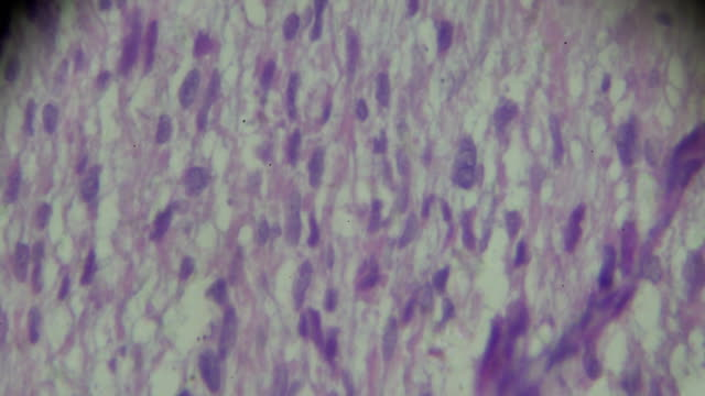 rhabdomyosarcoma biopsy under microscopy zoom in different range - stain test stock videos & royalty-free footage