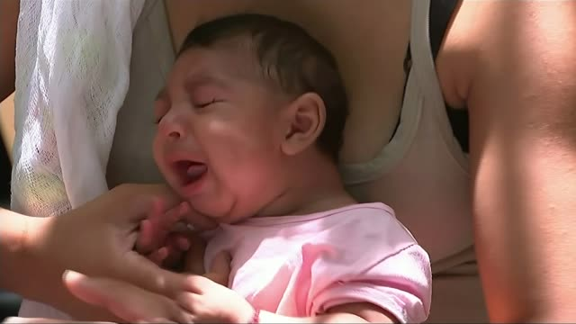 WHO rejects call to move or postpone games because of Zika virus LIB BRAZIL Recife Close shots of babies with microcephaly condition