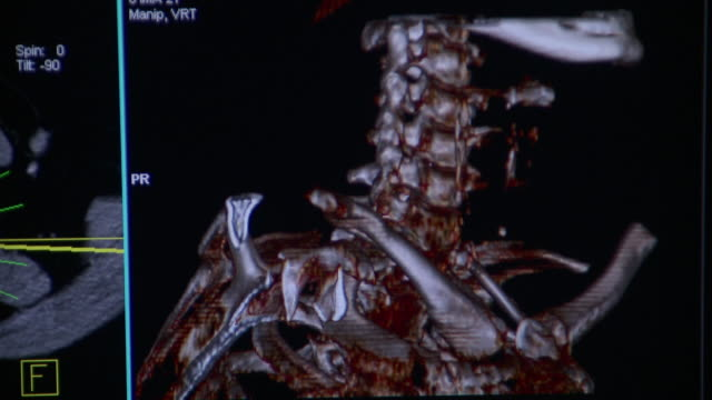 cu rotating 3d cat scan image of human neck on computer monitor / burlington, vermont, usa - neck stock videos & royalty-free footage