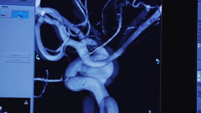 3-D rotating diagnostic image of arteries in a human brain used for catheterization of an aneurysm.