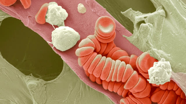 ruptured venule, sem - microbiologia video stock e b–roll