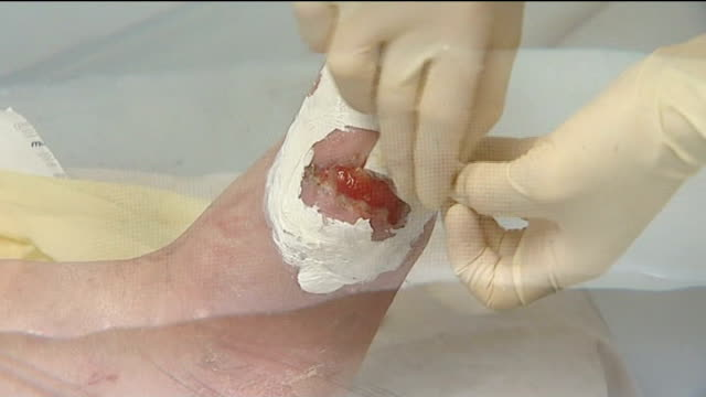 sachet containing maggots applied to diabetic ulcer to clean the wound jeff williams interview sot - 潰瘍点の映像素材/bロール