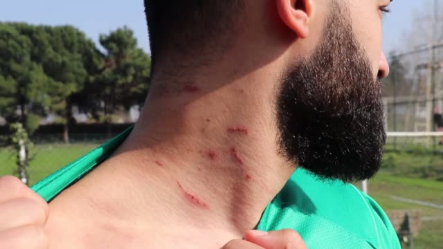sakaryaspor's board member cumhur genc and chairman cevat eksi hold a press conference about a razor attack happened the day before during the tff 2... - blade stock videos & royalty-free footage