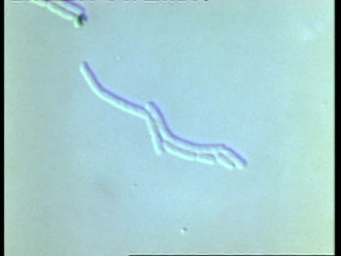 t/l salmonella bacteria multiplying - animale microscopico video stock e b–roll
