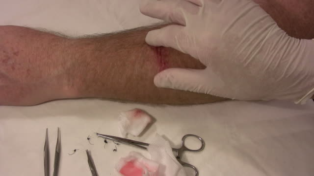 salve applied to a wound hd - surgical scissors stock videos & royalty-free footage
