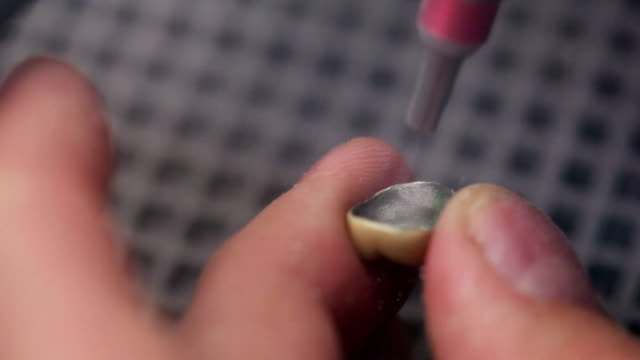 Sandblasting - Dental technician working on a tooth crown