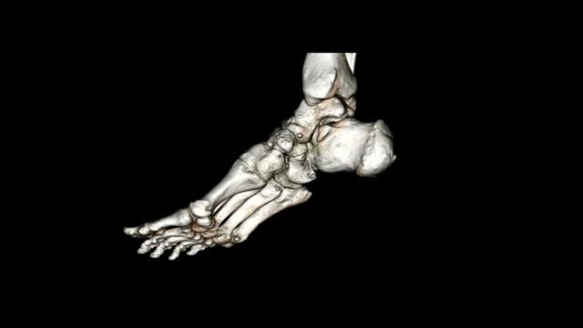 CAT スキャン画像の足