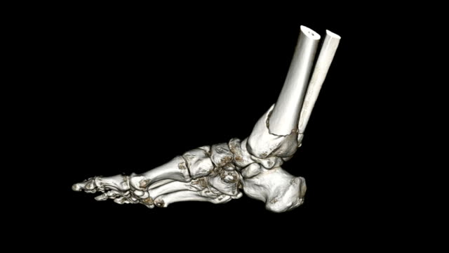 cat scan image of foot - human bone stock videos & royalty-free footage