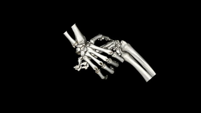 cat scan image of human hand and dog's paw - scientific imaging technique stock videos and b-roll footage