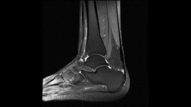 mri scan of a fractured human ankle (weber b type) - bone stock videos & royalty-free footage