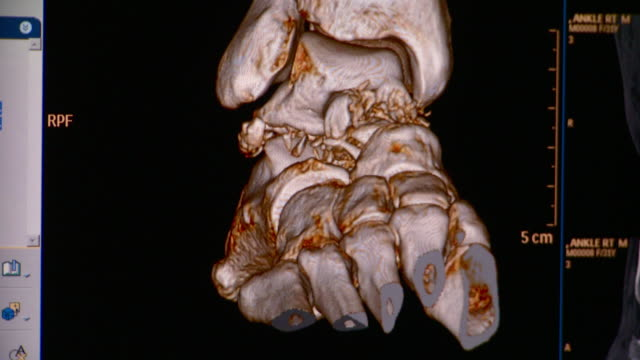 CU CT scan of ankle / Vermont, USA