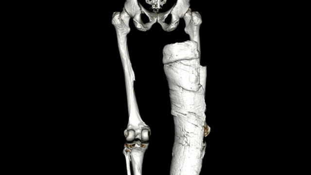 CAT Scan von broken femur
