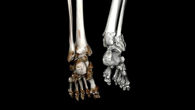 CAT Scan of Foot