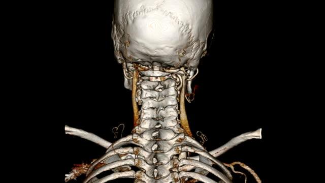 cat scan von kopf und nacken - menschlicher hals stock-videos und b-roll-filmmaterial