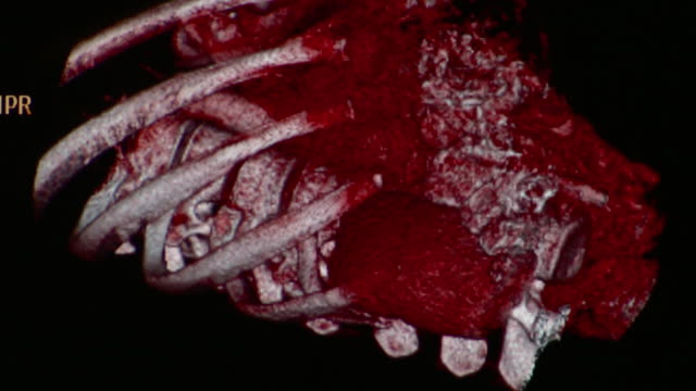 cu ct scan of human abdominal cavity / vermont, usa - 人間の消化器官点の映像素材/bロール