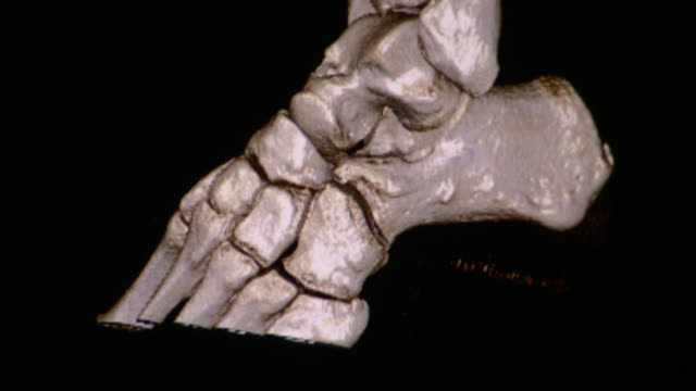 CU CT scan of human ankle / Vermont, USA