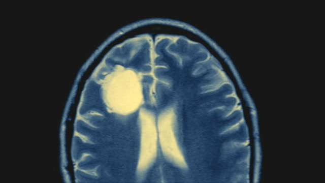 CU, CAT scan of human brain on computer screen, Swedish American Heart Hospital, Rockford, Illinois, USA
