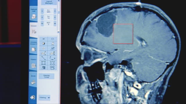 cu, cat scan of human brain on computer screen, swedish american heart hospital, rockford, illinois, usa - scientific imaging technique stock videos and b-roll footage