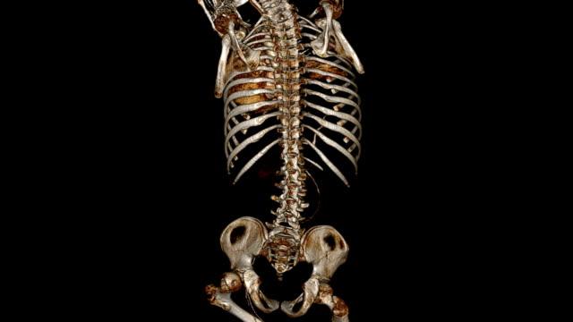 cat scan der menschlichen brust - knochen im beckenbereich stock-videos und b-roll-filmmaterial