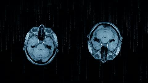 mr-undersökning av mänskliga huvudet och flytande koder - inspiration bildbanksvideor och videomaterial från bakom kulisserna