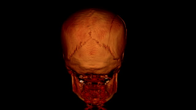 cat scan of human head - scientific imaging technique stock videos and b-roll footage