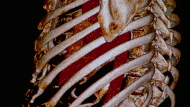 CU CT scan of human ribcage / Vermont, USA