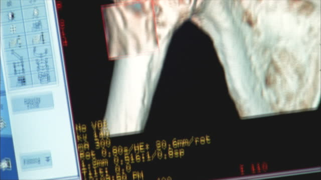 CU, TU, CAT scan of human shoulder on computer screen, Swedish American Heart Hospital, Rockford, Illinois, USA