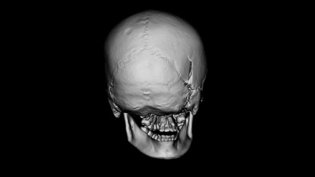 CAT Scan of Human Skull
